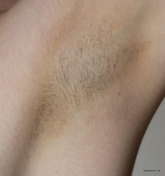 4 Wochen nach der ersten Behandlung: Die Haare wachsen langsamer nach und erste kleine, kahle Stellen sind sichtbar