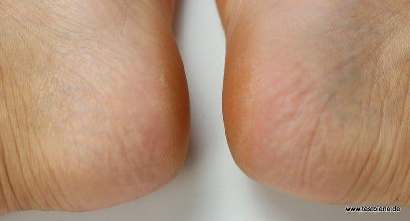 Schöne Füße Mit Dem Velvet Smooth Express Pedi Von Scholl