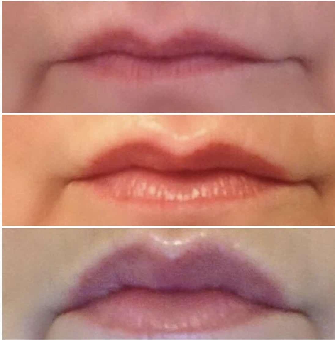 Volle Lippen ohne Aufspritzen
